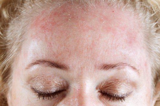 червоні плями на лобі у дорослого чоловіка причини
