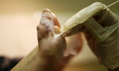 Кріотерапія підошовної бородавки