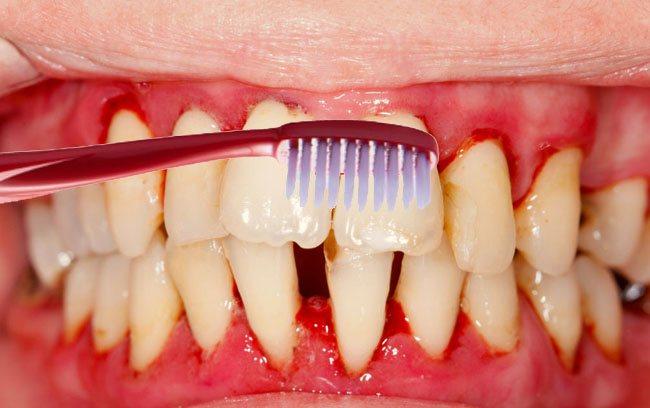кровоточать ясна при чищенні зубів