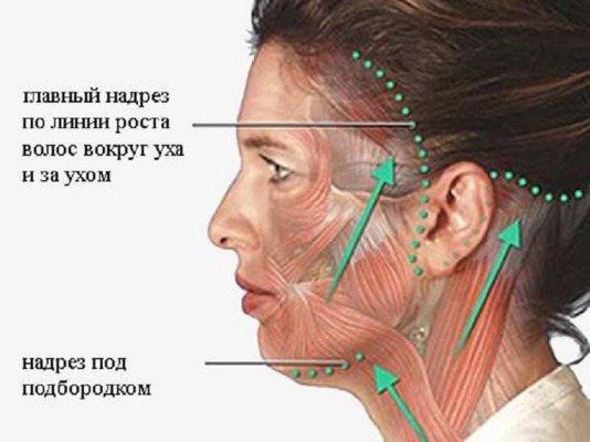 Кругова підтяжка обличчя. Фото до і після, ціна, як проходить операція хірургічним шляхом, нитками, і без операції. Відгуки та ціни