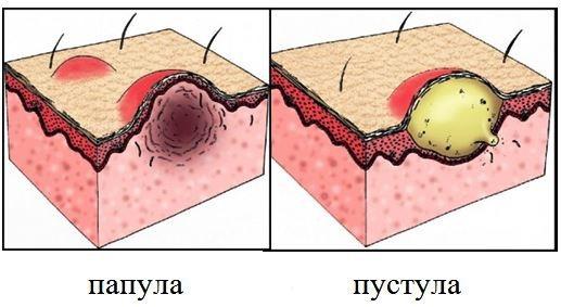 Куріозін. Інструкція по застосуванню мазі для особи в косметології від зморшок, ефективність, ціна гелю, відгуки