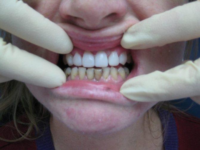 ламінування зубів