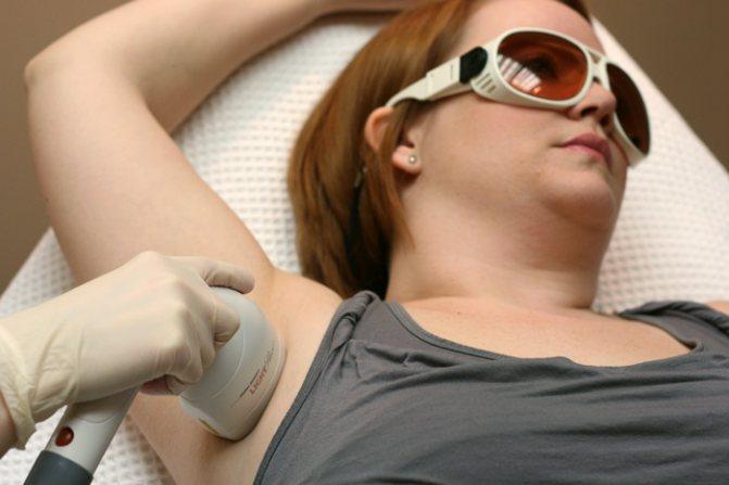 лазер для особи в косметології