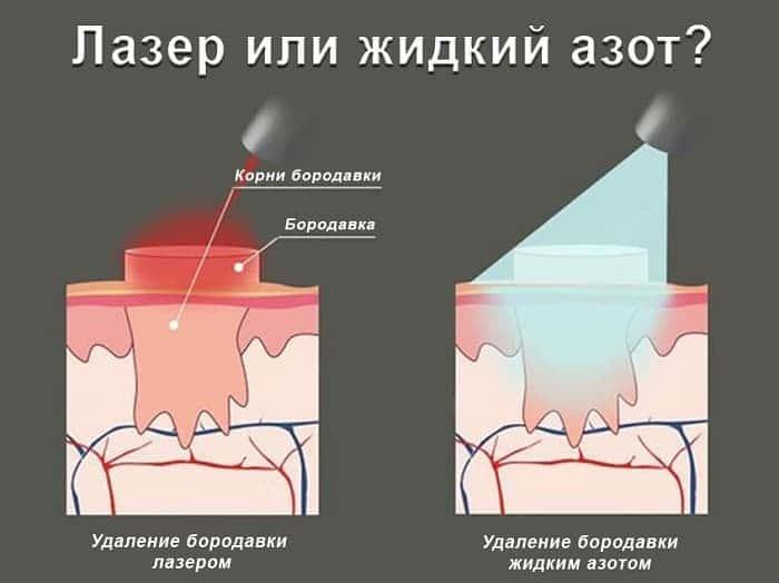 Лазер або рідкий азот проти бородавок