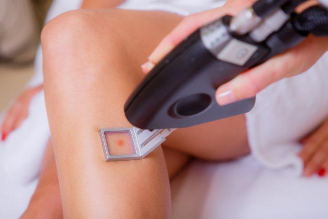 лазер СО2 в косметології