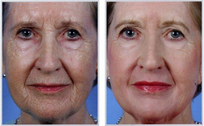 лазерне омолодження обличчя до і після