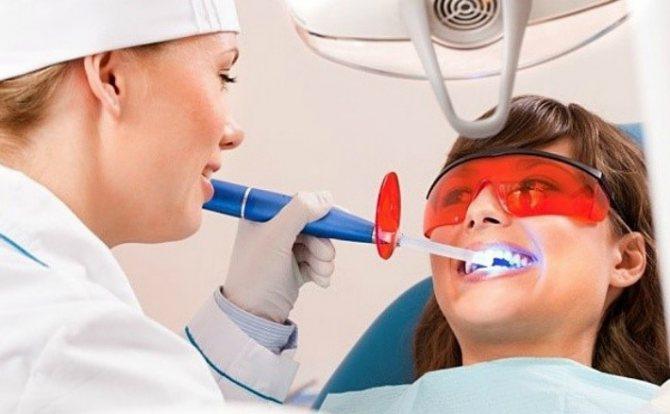 Лазерне відбілювання зубів