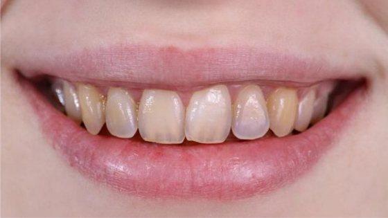 Лікування ерозії емалі зубів, причини, фото, ціна