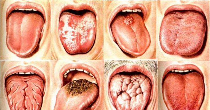 Лікування глоситу мови в домашніх умовах