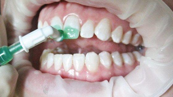 Лікування карієсу зубів методом Icon без препарування
