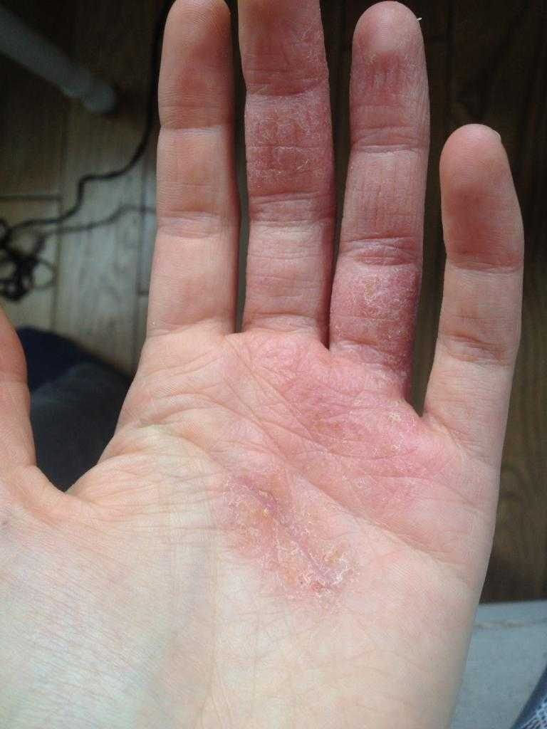 лікування шкіри рук