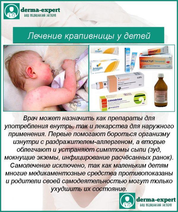 Лікування кропив'янки у дітей