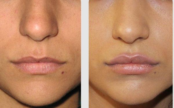 Ліпофілінг особи. Фото губ, повік, носо-губних складок, підборіддя, скул, носа, під очима, щік. Як робиться, наслідки