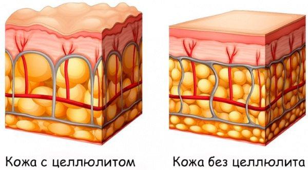 Ліполітікі Light fit від мішків під очима, для схуднення. Склад, протипоказання, відгуки