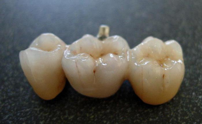 кращі зубні коронки