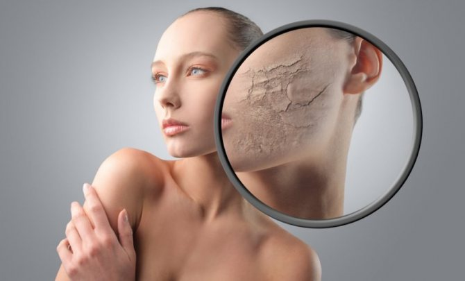 Маска з оливковою олією прекрасно підходить тим, хто страждає підвищеним лущенням шкіри