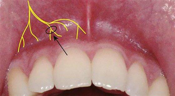 Механізм дії інфільтраційної анестезії