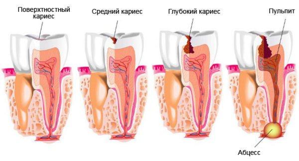 Механізм руйнування зуба