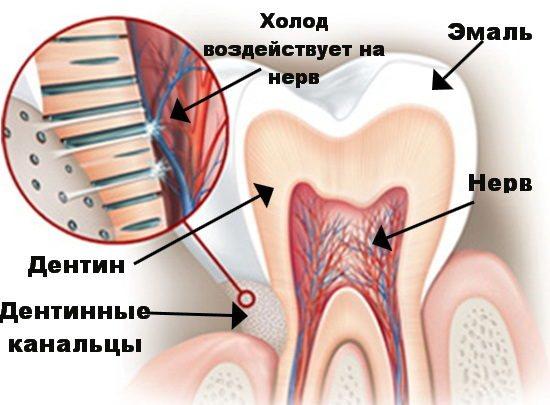 Механізм впливу холоду на нерв через дентинні канальці