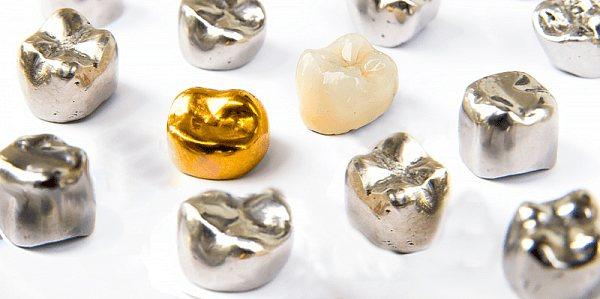 металеві протези на зуби