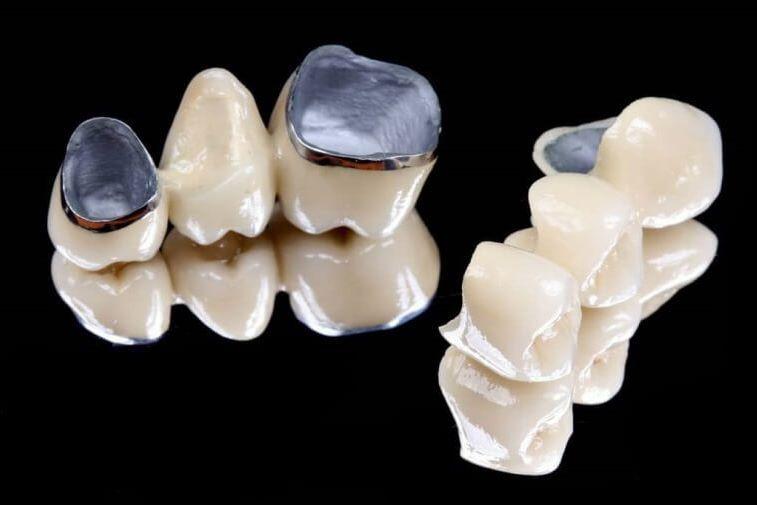 металокерамічні коронки