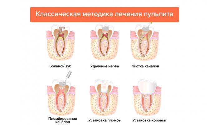 Методи лікування пульпіту