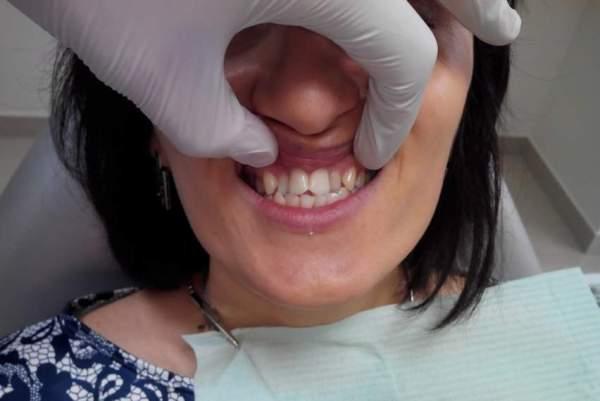 Методи лікування скупченості зубів