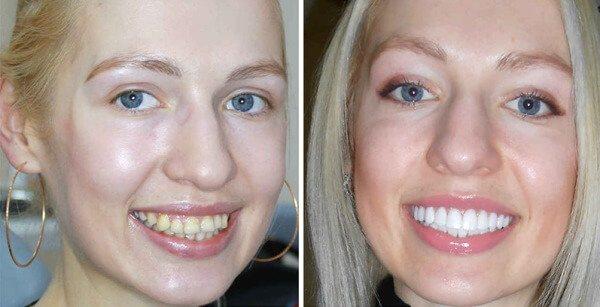 Методи вирівнювання зубів винирами