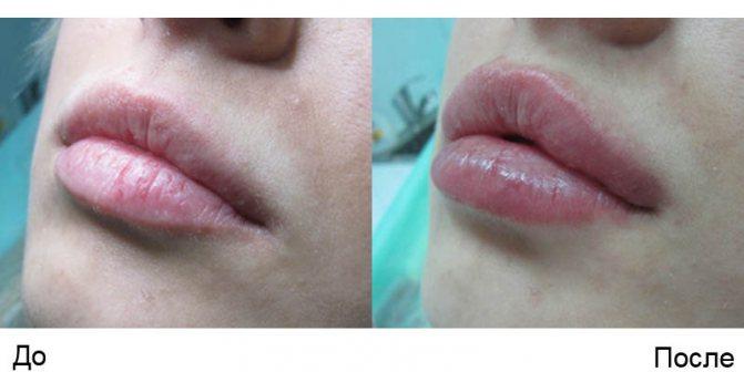 Мезоніті для губ на фото
