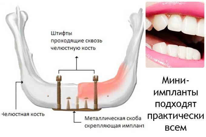 мікро-імпланти