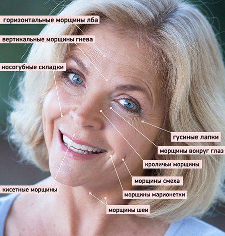 Мімічні зморшки, які можуть коригуватися ботоксом