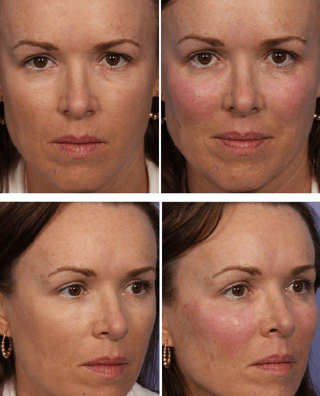 Моделювання скул на обличчі