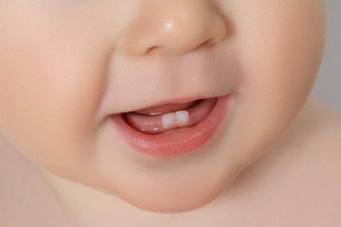молочні зуби терміни