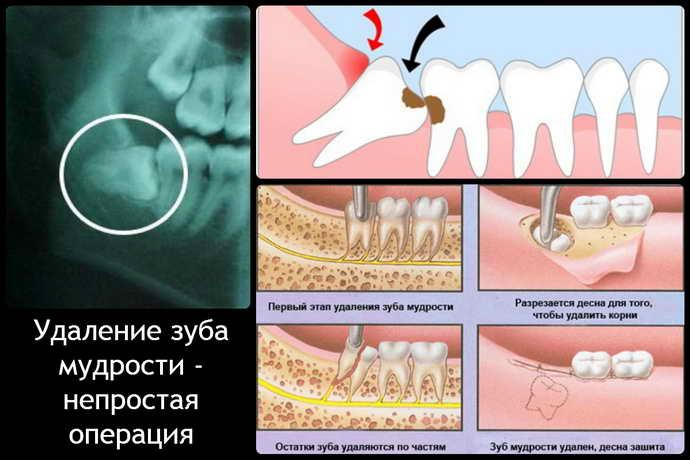 Чи може з'явитися біль під час операції з видалення зуба мудрості