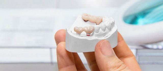 Чи можна знайти альтернативу імплантації зубів