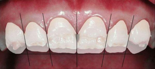 Чи можна відбілити тетрациклінові зуби