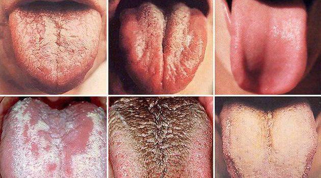 м'язи язика