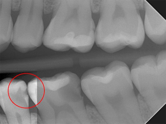 На цьому рентгенівському знімку добре видно поразку зуба глибоким карієсом, який був би непомітний при простому візуальному огляді.