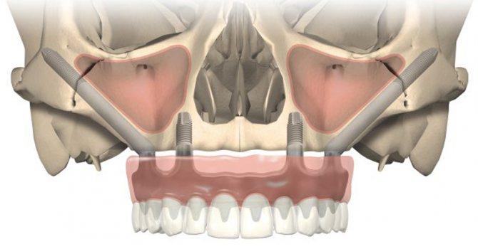 На фото зображений приклад виличної імплантації