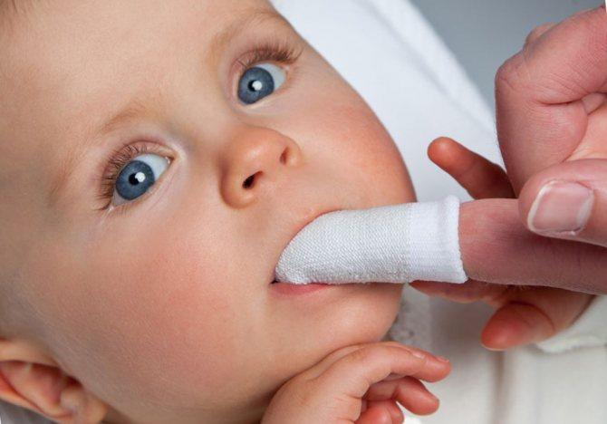 На фото показана гігієна порожнини рота у немовляти за допомогою спеціальної серветки