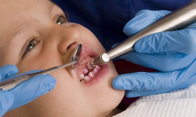 На фото показана професійна чистка зубів дитині