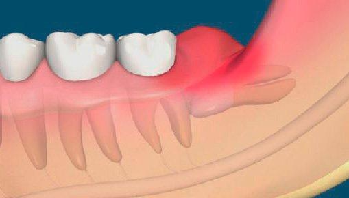 На зображенні наочно показано, як ясенний капюшон накриває зуб мудрості