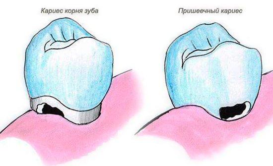 На зображенні показана різниця між пришийкову карієсом і каріозною руйнуванням кореня зуба.