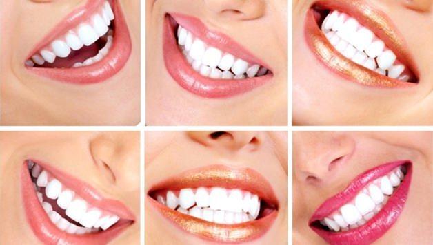Накладки на зуби
