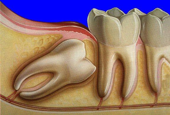 Нахил 8 зуба