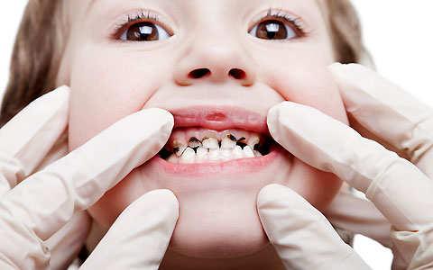 Наліт Прістлі у дітей на постійних зубах