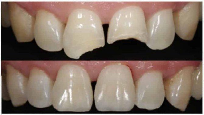 нарощування передніх зубів