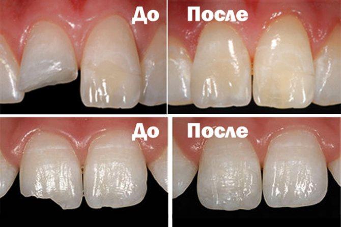 нарощування зуба пломбою