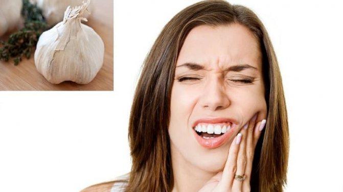 Народні засоби від зубного болю