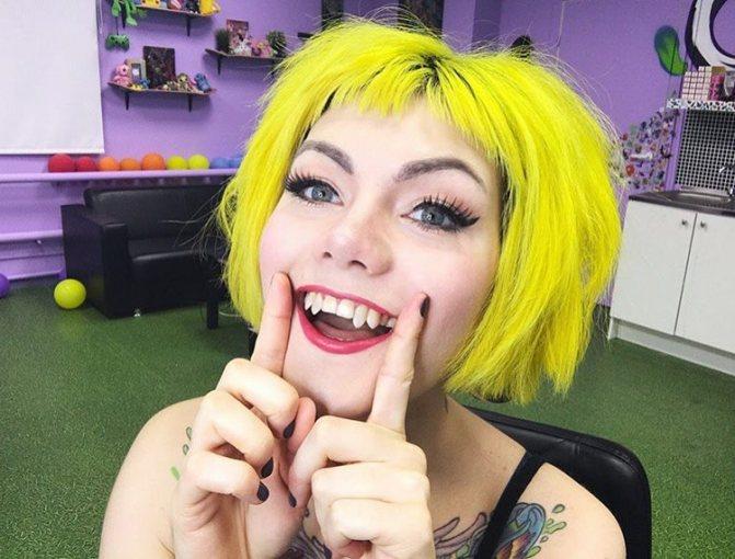нарощені зуби